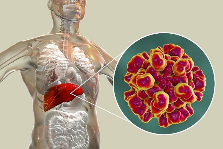 Hepatitis Behandlung MIT
