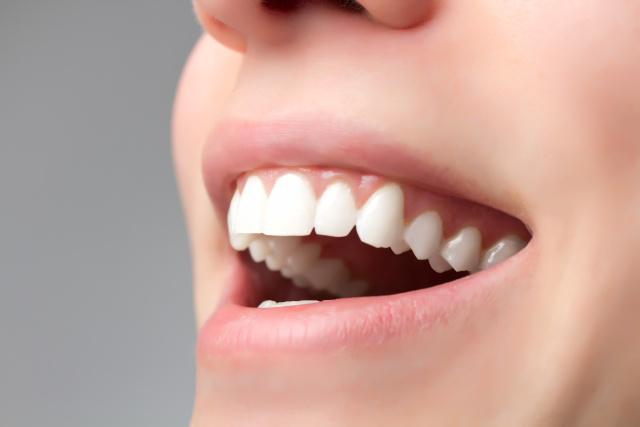 perfekte Zähne einer Frau