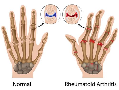 Darstellung Rheuma Hände