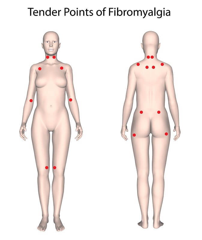 Fibromyalgie Autoimmunerkrankung